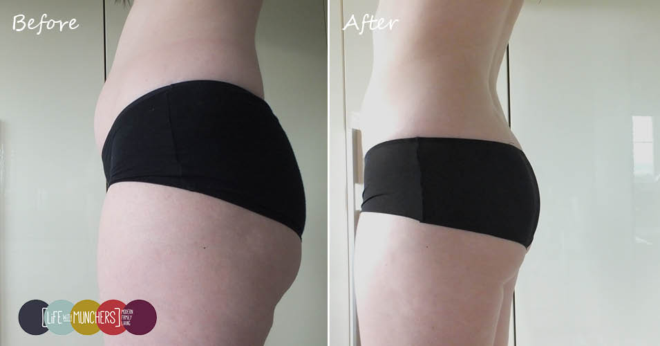 slendertone bottom before and after